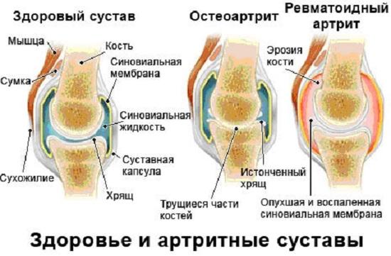Остеоартроз периферических суставов лечение больных суставов массажер