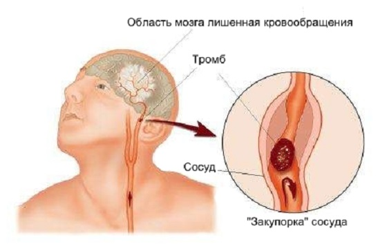 Суть процесса нарушения кровообращения при ишемическом инсульте