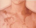 Токсидермия