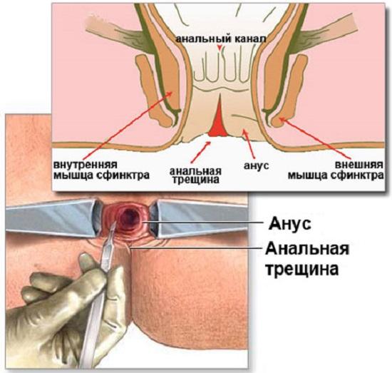 Как виличить анальную трещину