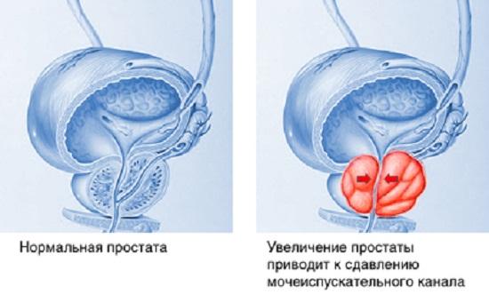 Простата в нормальном и воспаленном (увеличенном) состоянии