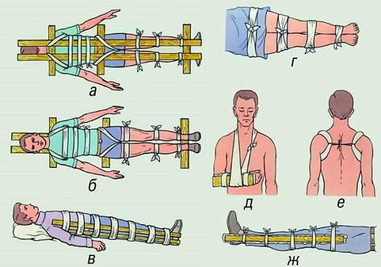Фиксация закрытых переломов (рис. 2)