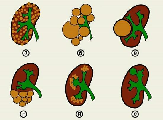 Виды кистозных аномалий (зеленым цветом показана чашечно-лоханочная система обозначена зеленым для определения соотношения положения): а — поликистоз; б — мультикистоз; в — солитарная киста; г — мультилокулярная киста; д — губчатая почка; е — чашечковый дивертикул в верхнем полюсе почки