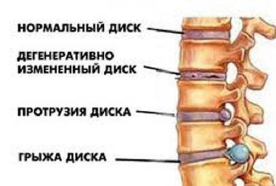 Воздействие процессов грудного остеохондроза на позвонки