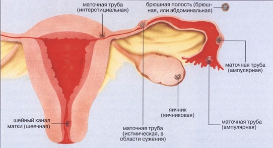 Как понять беременность внематочная или нет