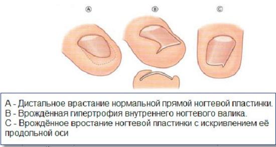Формы врастания ногтевой пластины