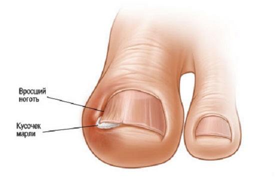 Строение ногтя на ноге большого пальца