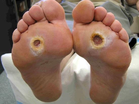Диабетическая стопа: фото пораженной кожи