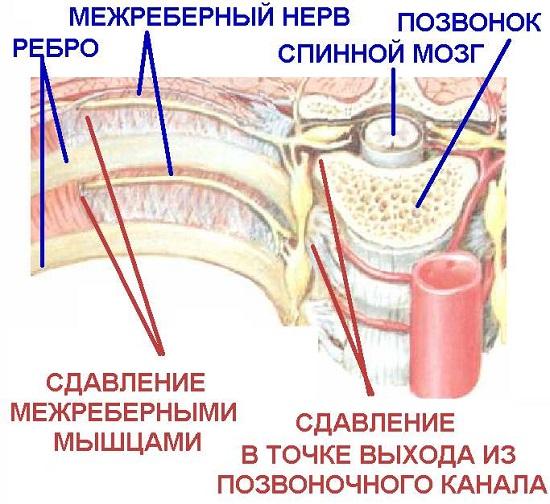 Защемление нервов при грудном остеохондрозе