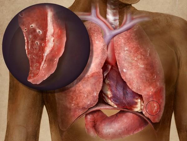 Аллергический туберкулезный плеврит