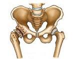 Изображение - Кости артроз тазобедренного сустава artroz-tazobedrennogo-sustava