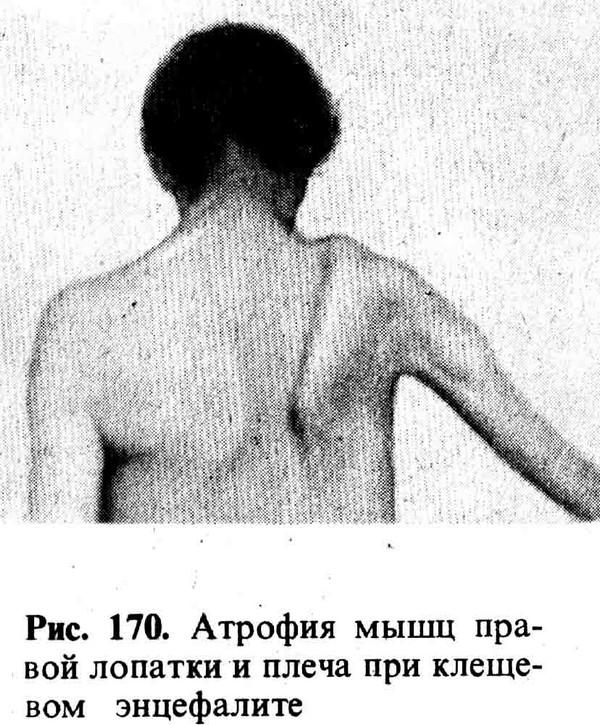 Атрофия мышц при клещевом энцефалите