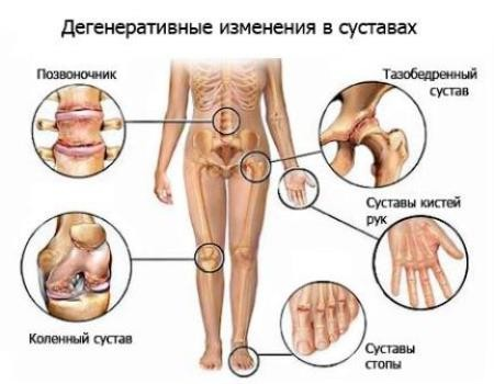 Дегенеративные изменения в суставах при полиартрозе
