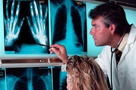 Диагностика детского артрита