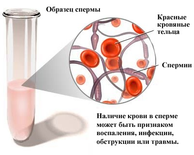 Диагностика эпидидимита