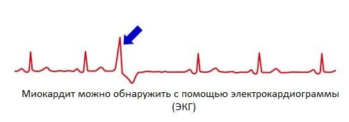 Диагностика миокардита