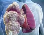 Что происходит в легких