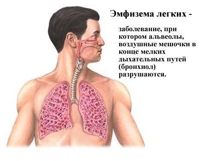Эмфизема легких причины признаки лечение