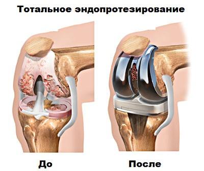 Изображение - Полиартроз голеностопного сустава endoprotezirovaniye-kolennogo-sustava
