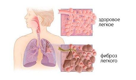 Фиброз лёгкого