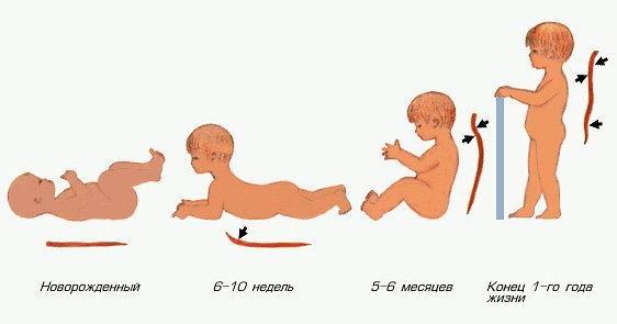 Формирование физиологического поясничного лордоза у ребенка