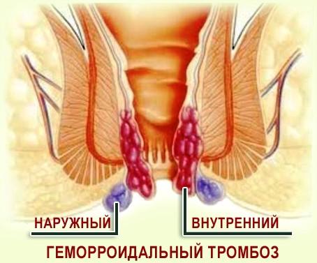 Лиотон или троксевазин что лучше при варикозе