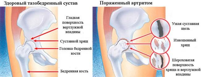 Инфекционный артрит тазобедренного сустава