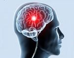 Ишемическая болезнь головного мозга симптомы у взрослых