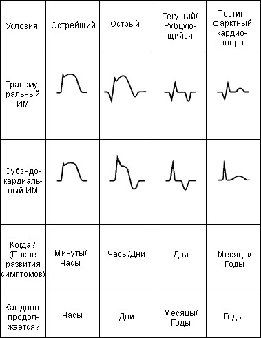 Изменения ЭКГ при инфаркте миокарда с течением времени