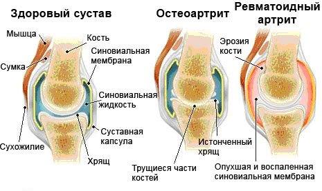 Изображение - Артрит левого плечевого сустава лечение izmeneniya-pri-artrite