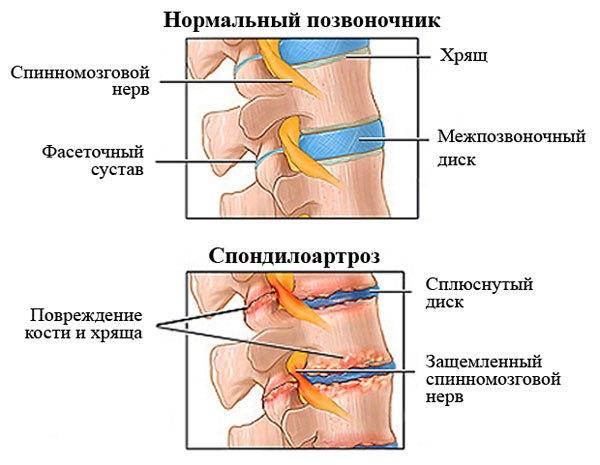 Спондилоартроз грудного отдела позвоночника симптомы
