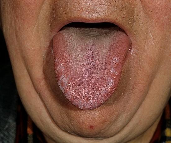 Кандидоз полости рта