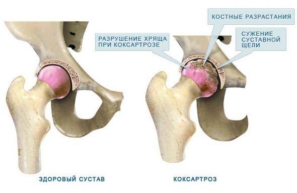 Прогрессивныи метод лечения пзаболевания суставов в москве артроскопия коленного сустава во владивостоке подробно