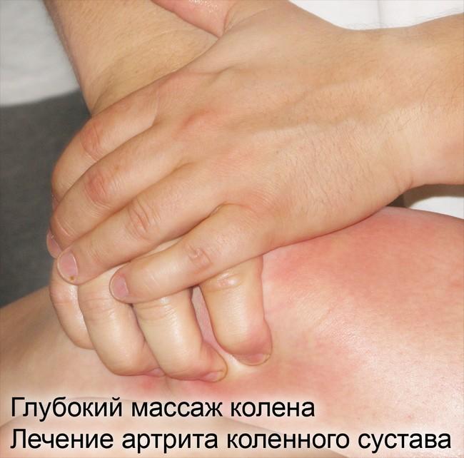 способ лечения артрит коленного сустава