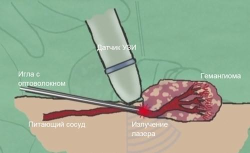 Гемангиома - причины, симптомы и лечение доброкачественного новообразования