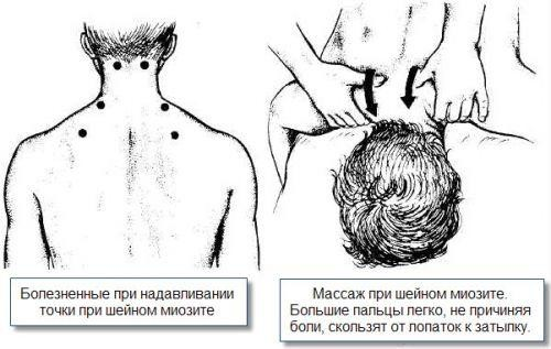 Миозит шейных мышц