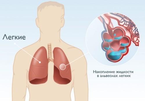 Накопление жидкости в альвеолах лёгких