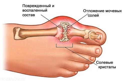 Подагрический артрит - причины, симптомы и лечение