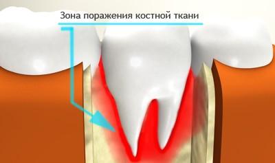Поражение костной ткани