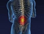 Остеохондроз пояснично-крестцового отдела позвоночника