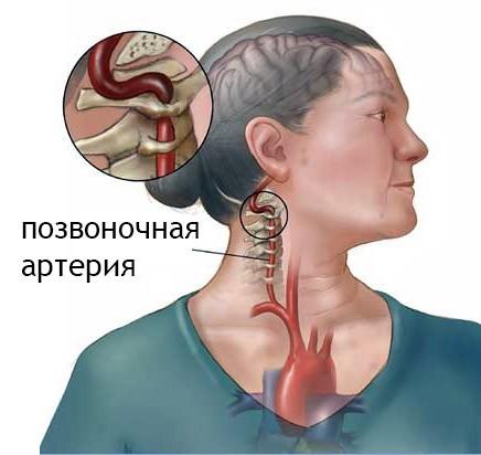 Расположение позвоночной артерии