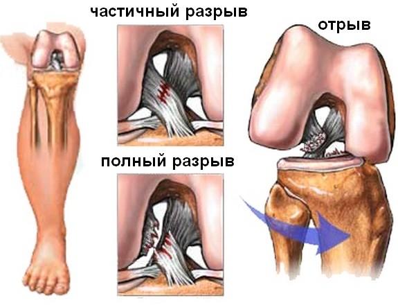 Причины травматического гемартроза