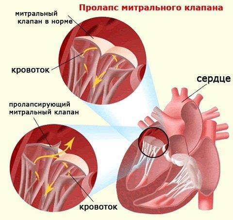 Порок сердца: формы, причины, симптомы и лечение