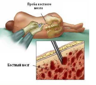 Пункция красного костного мозга