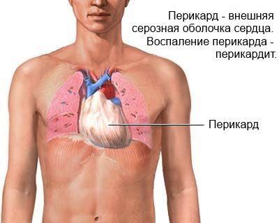 Перикардит - причины, признаки, симптомы и лечение