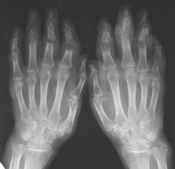 Рентгенография кистей при мутилирующем артрите