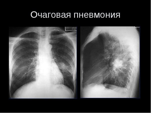 Рентгенологическое исследование при пневмонии