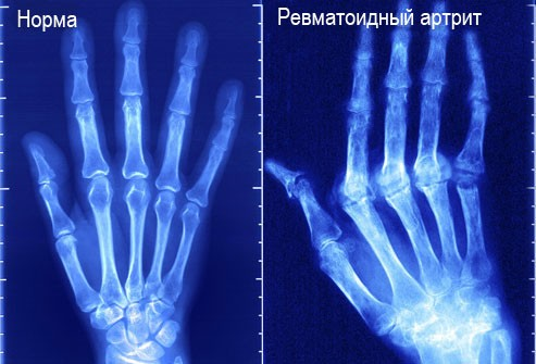 Ревматоидный артрит (рентген кисти)