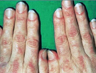 Симптомы дерматомиозита