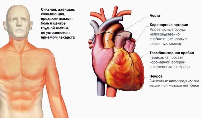 Симптомы случившегося инфаркта миокарда